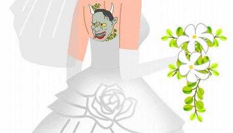 タトゥー・刺青レーザー除去と分割切除