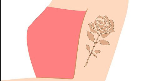 タトゥー・刺青除去レーザーや切除後相談