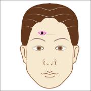 刺青・タトゥーに対する紡錘形切除