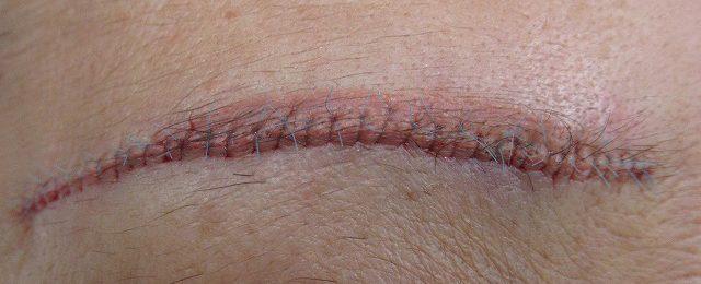 脅迫神経症のわたくしが行う眉毛下切開傷跡修正