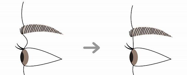 眉下切開の効果について
