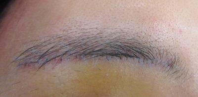 眉下切開の術後経過