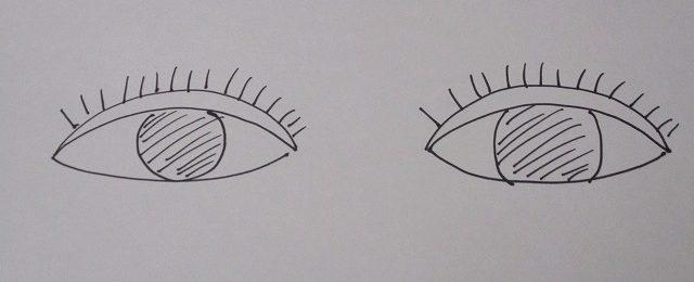 眼瞼下垂の手術について考えること