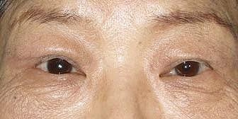 眼瞼下垂の手術や二重切開法後の相談