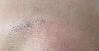 眉下切開(眉下リフト)の傷跡について