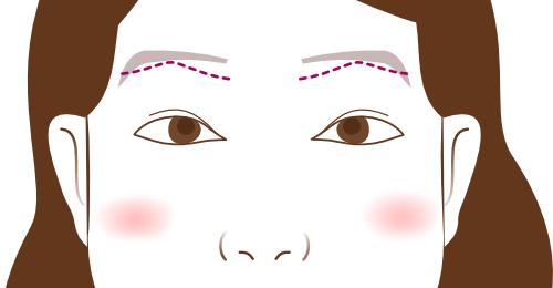 他院眉下切開修正とアートメイク