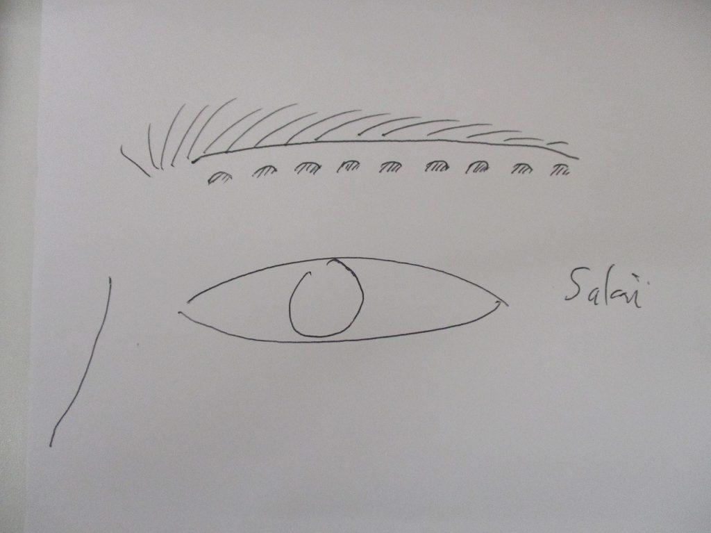 第3の眉下切開修正パターン
