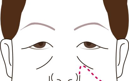 長期経過の良い美容医療 小顔施術2