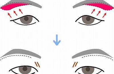 まぶたの手術後のかたの眉下切開