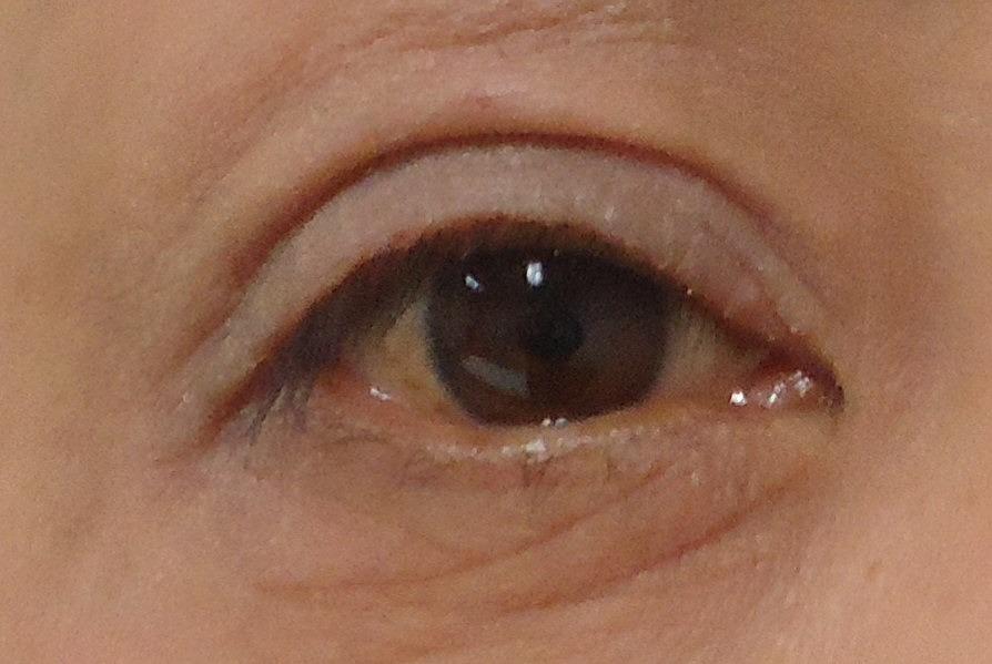 眉下切開後腫れて見えないのはなぜ?