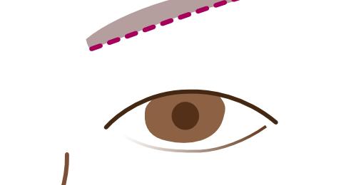眉下切開の傷跡を目立たなくする方法