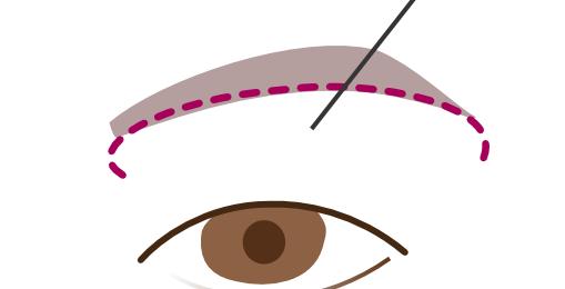 眉下切開の手術器具