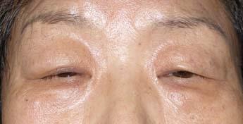 眼瞼下垂や眉下切開の保険適応