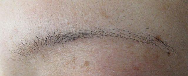 眉下切開の逆毛根斜切断(wedge incision)