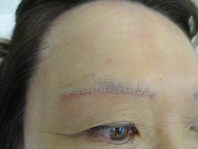 眉下切開の皮膚縫合は連続縫合か結節縫合か?