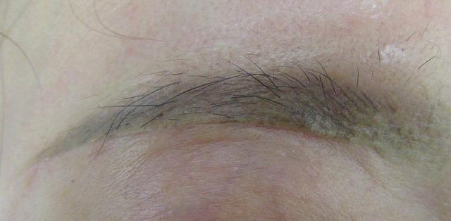 眉下切開の真皮縫合はPDSなどの溶ける糸がいい?