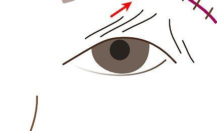 続々・眉下切開の追加治療