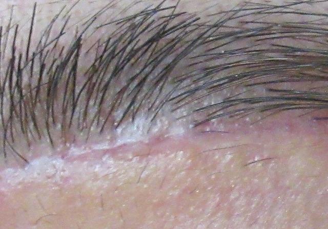 眉毛下切開と筋肉・脂肪について