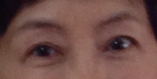 眼瞼下垂の手術と眉毛下切開について悩むこと