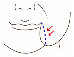 お顔のたるみ治療