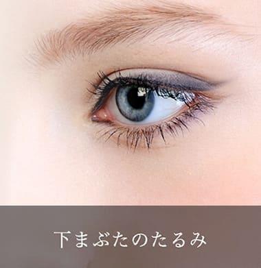 目の下のたるみ治療