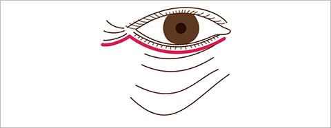 下眼瞼形成術