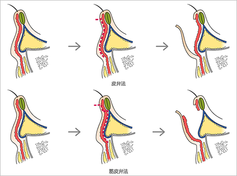 下まぶたの皮膚側を切り取る手術に共通する切開線