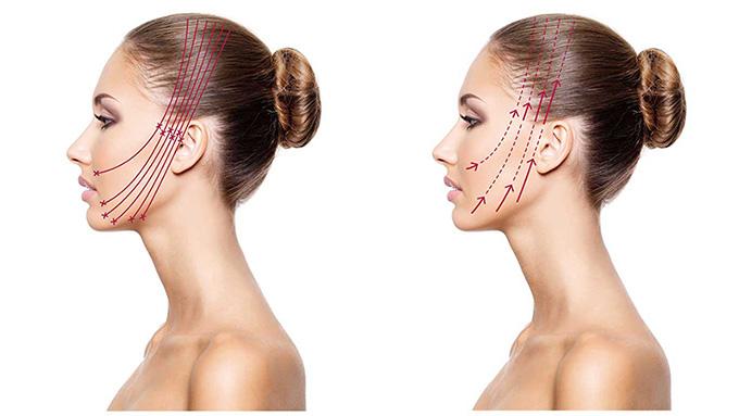 スプリングスレッドの手術の概要と手順